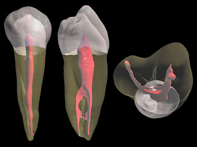 Root canal treatment in Prague
